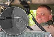 Americký voják přežil probodnutí hlavy